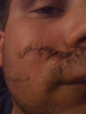 The man was left with deep wounds to his face following  the racist attack