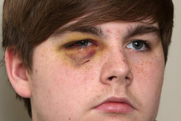 East London and West Essex Guardian Series: Nathan Inness-Harrero suffered a fractured eye socket in the attack